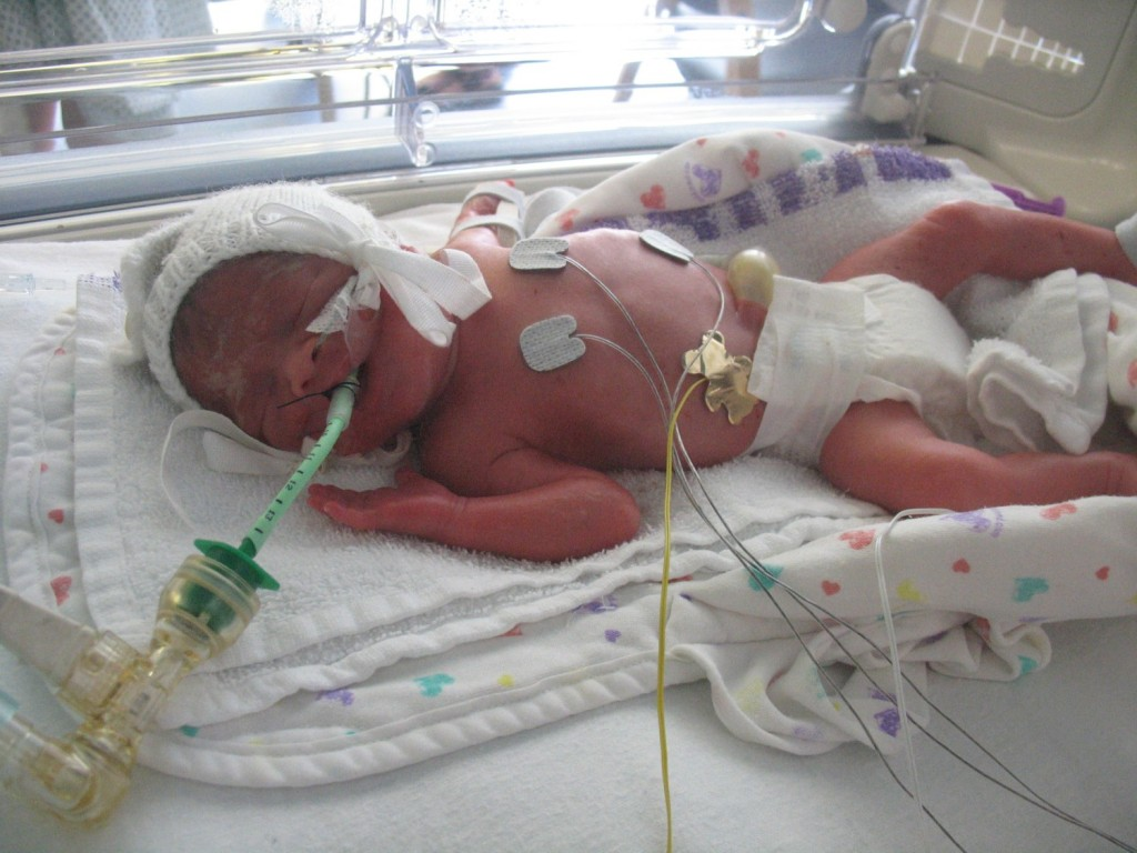 Anybody Home Baby Boy One Month Today: Our Journey Through NICU In Emails